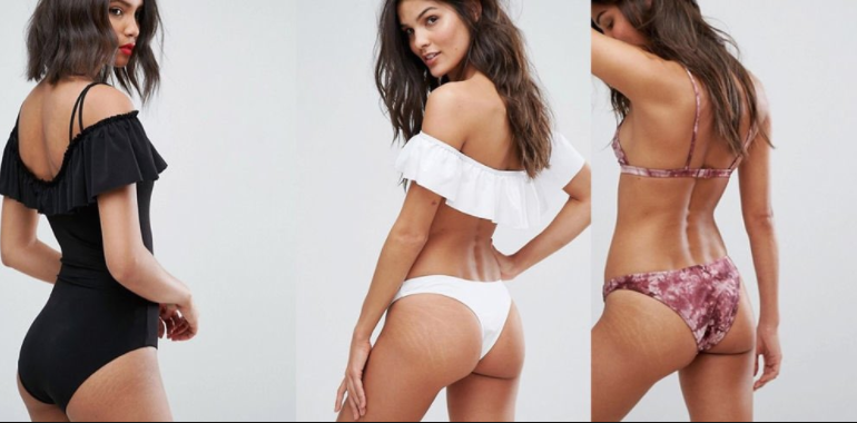 Le site Asos assume la cellulite et on aime ça !